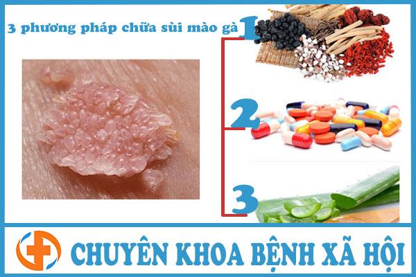 3 phuong phap chua sui mao ga hieu qua
